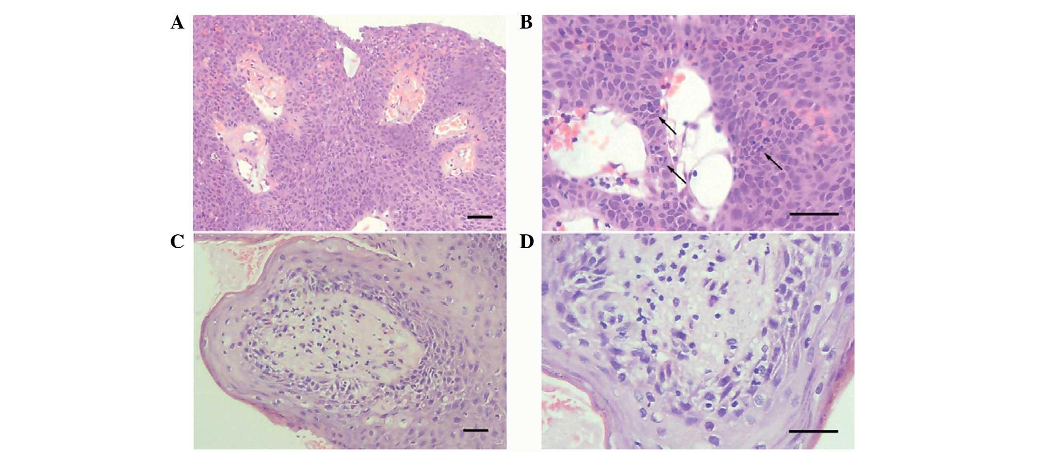 anemie 9 6 cancerul benign la san