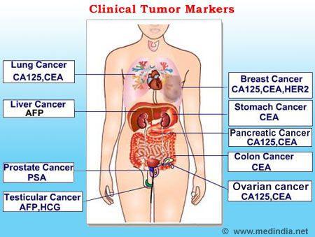 abdominal cancer tumor markers intervento papilloma nasale