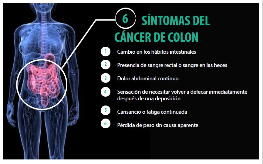 sintomas del cancer de colon en hombres