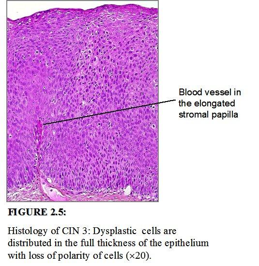 cervical cancer cin3 hpv causes