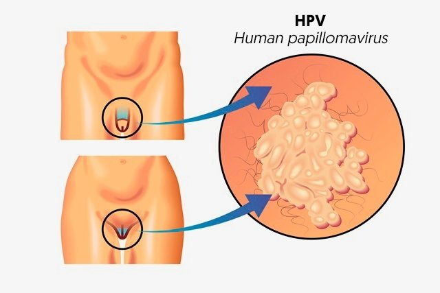 hpv in mouth cure wart treatment during pregnancy