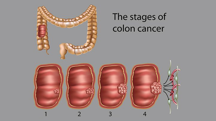 rectal cancer how long to live