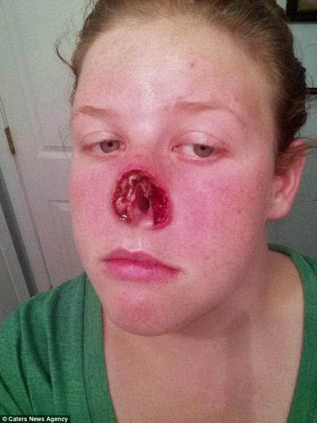 aggressive cancer nose