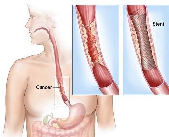cancerul esofagian tratament