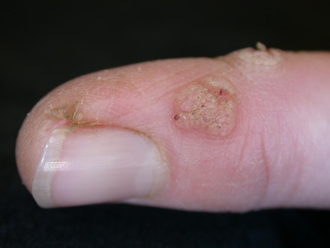 wart treatment stages