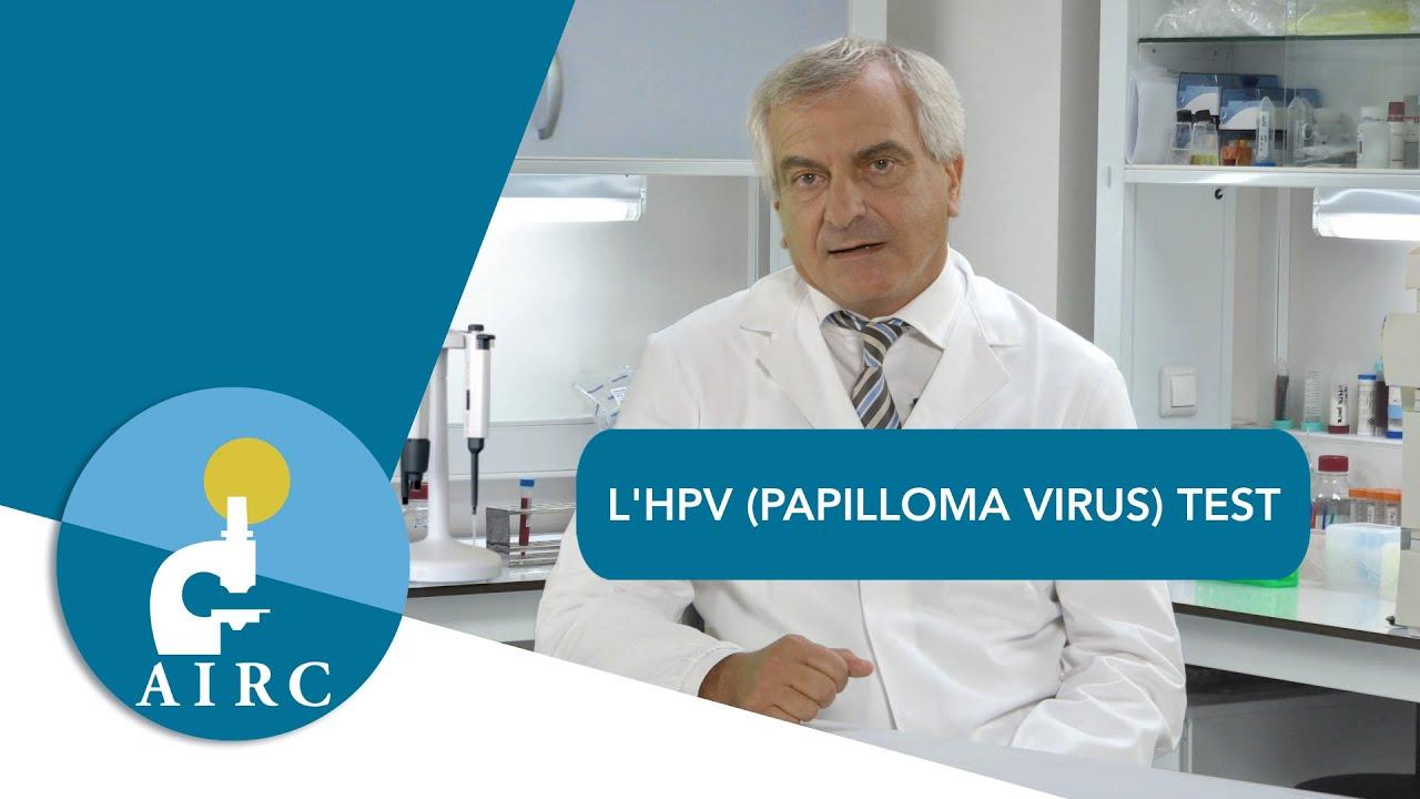 contagio papilloma virus sintomi papilloma vescicale di 1 cm