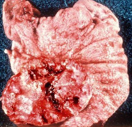 cancerul gastric cauze