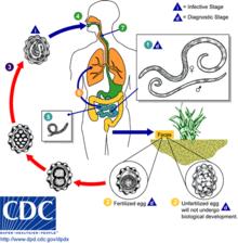 helminth disease symptoms