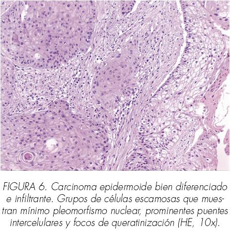 Terapia cancerului de prostată imună