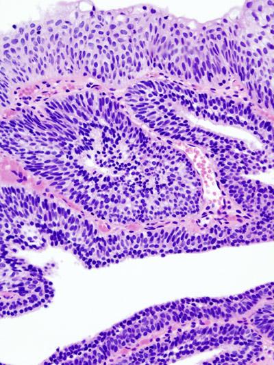 bladder papilloma histology ovarian cancer ca125