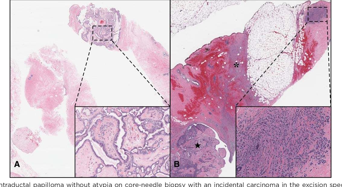 breast intraductal papilloma peritoneal cancer blockage