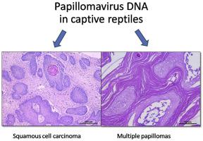 papilloma and carcinoma