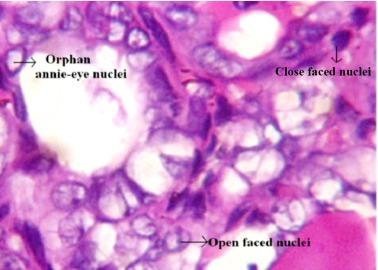 virus papiloma humano foro duct papilloma diagnosis
