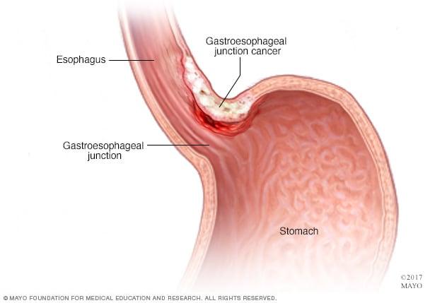 uterine cancer figo staging rimozione papilloma gola