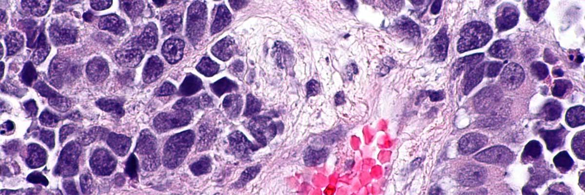paraziti intestinali simptome adulti sarcoma cancer nutrition