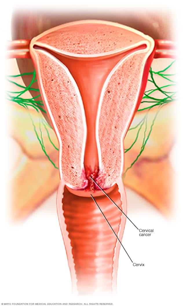 cancer cervical que causa