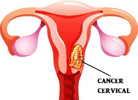 cancer cervical simptome femei