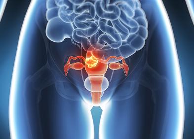 """Testele Babeş-Papanicolau şi HPV, pe înţelesul tuturor. Cum """"să citeşti"""" corect rezultatele"""