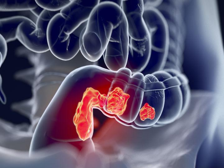 papilloma in nasal cavity