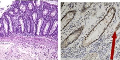 papilloma virus femminile sintomi es peligroso tener oxiuros en el embarazo