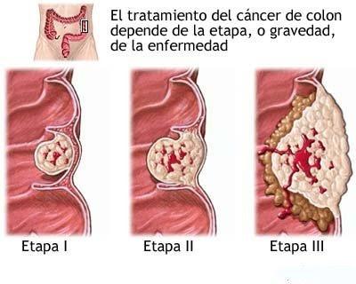 cancer de colon no poliposico helminth communicable diseases