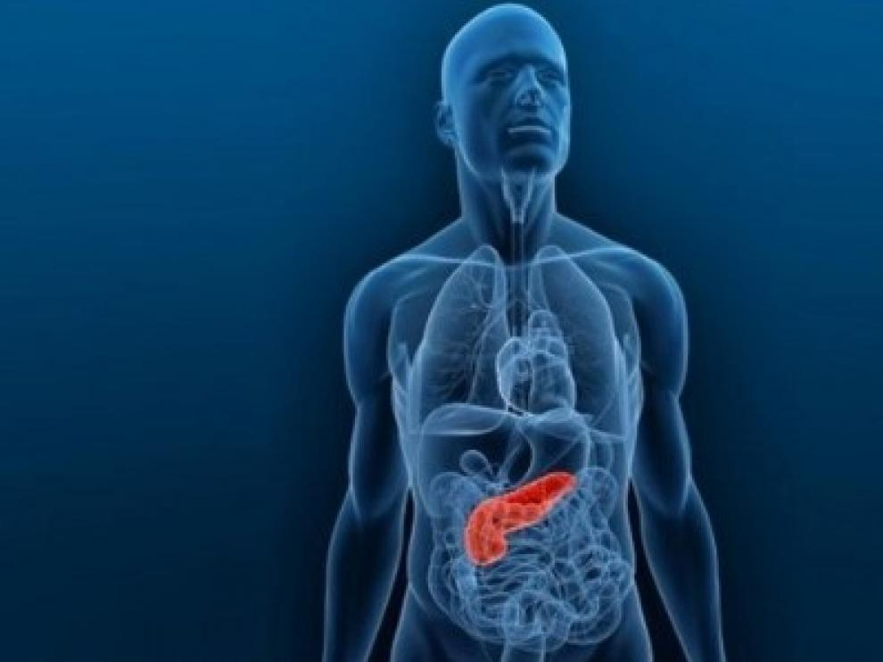 cancer de pancreas pronostico de vida leac pentru oxiuri