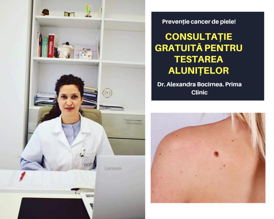 cancer de piele romania