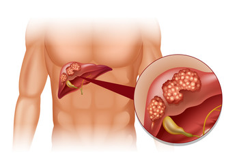 cancer de col uterin la 20 ani