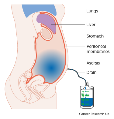 cancer in peritoneal fluid