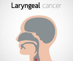 cancer laringian evolutie
