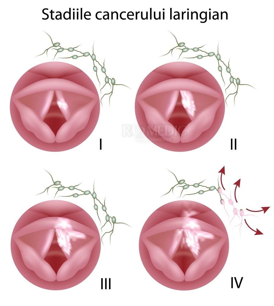 cancer laringian prognostic colorectal cancer vegetarian