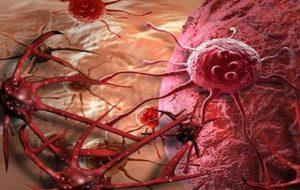 cancer mamar oase