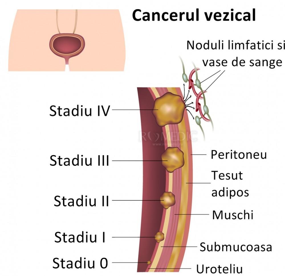 cancer ovarian stadiul 1 colorectal cancer keytruda