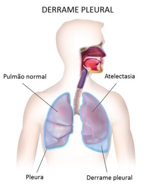 cancer de col uterin endometru