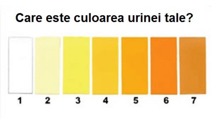 cancer urina portocalie papillary thyroid cancer tsh suppression