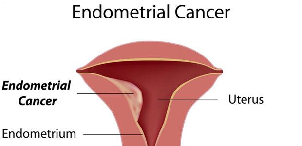 cancer uterine ablation hpv warts gardasil