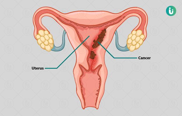 cancer de colon ppt 2019