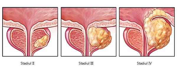 cancerul de prostata tratament hormonal