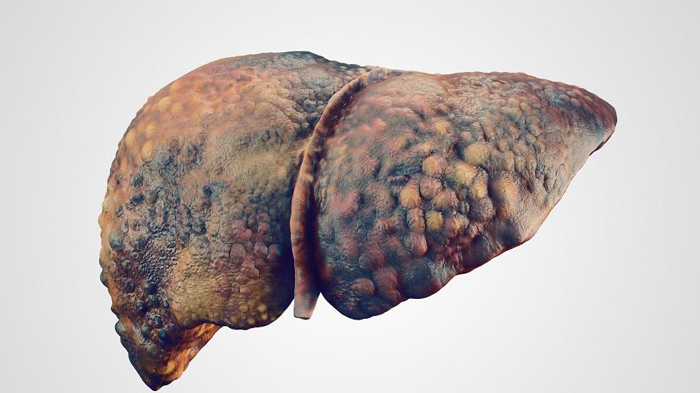 cancer ficat metastaza