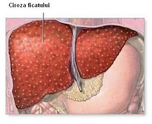recurrent laryngeal papilloma