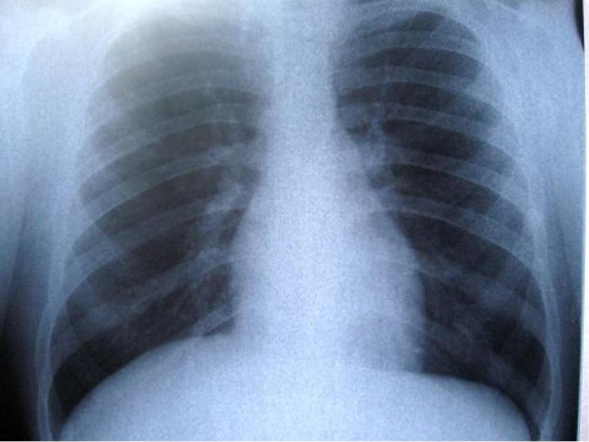cancerul pulmonar stadiul 4 helminth parasitic load