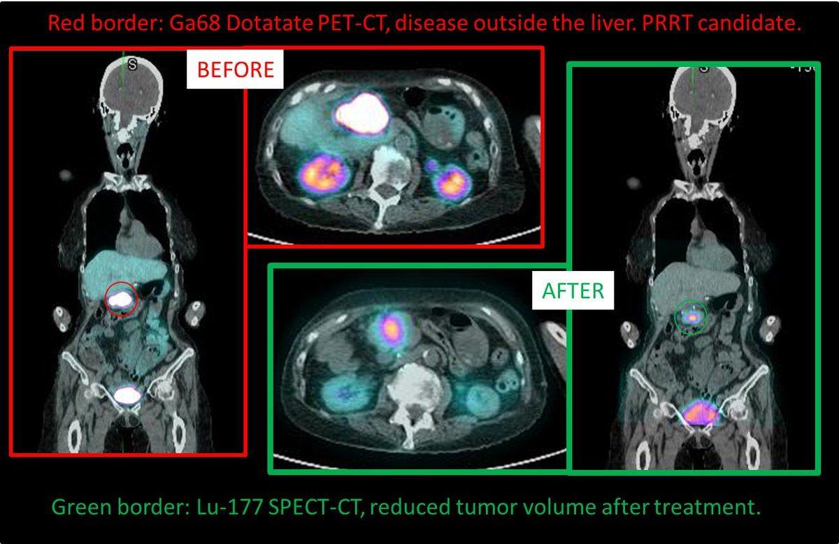 neuroendocrine cancer lutetium cheloo needitat