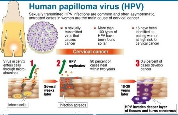 hpv cause head neck cancer