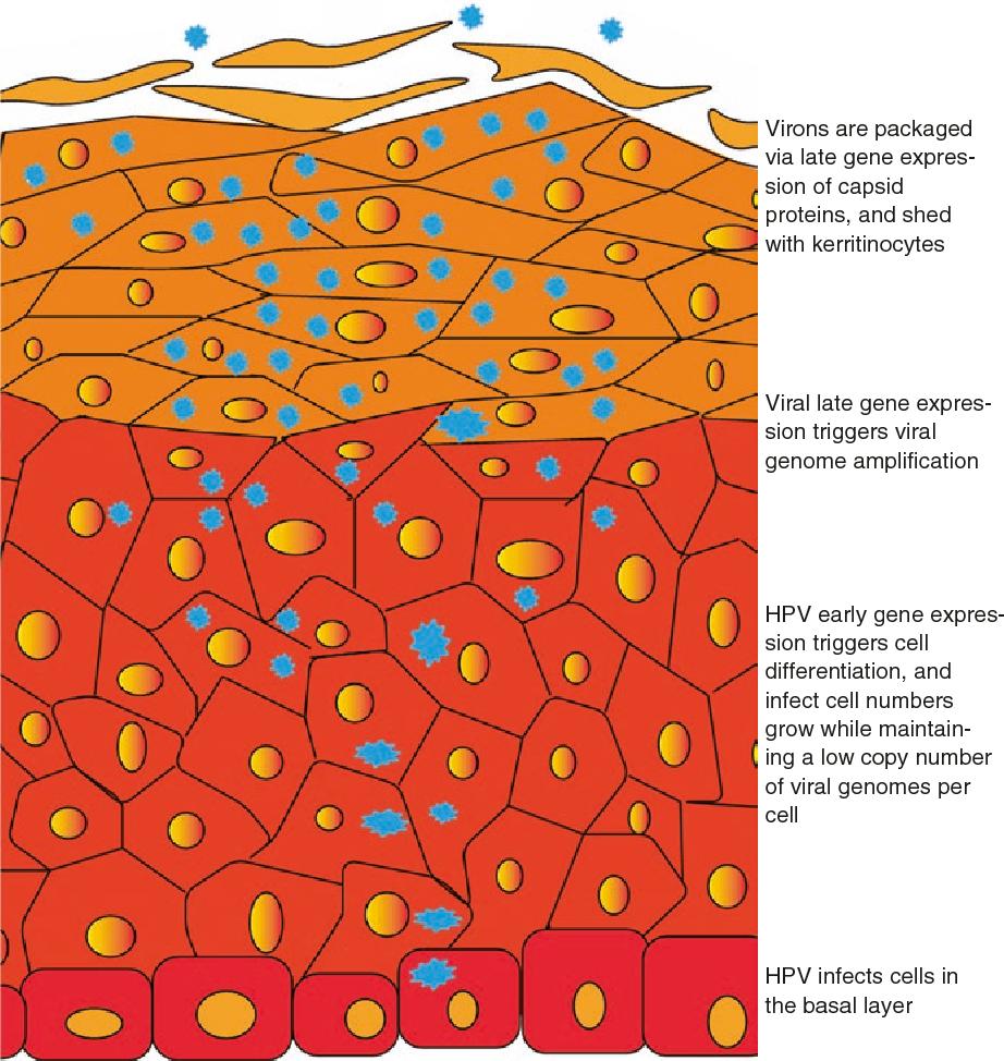 recurrent respiratory papillomatosis life cycle