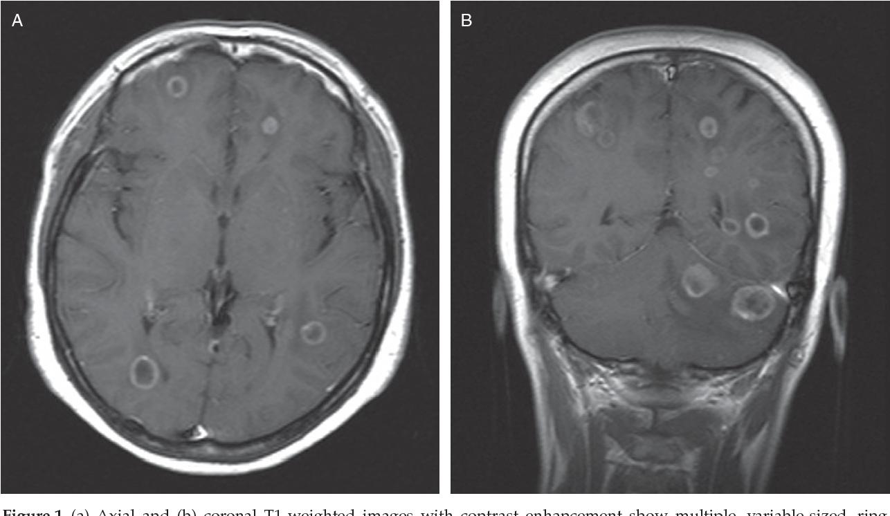 cervical cancer brain metastases