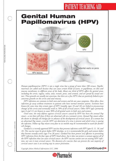papilloma e un tumore nhs hpv side effects