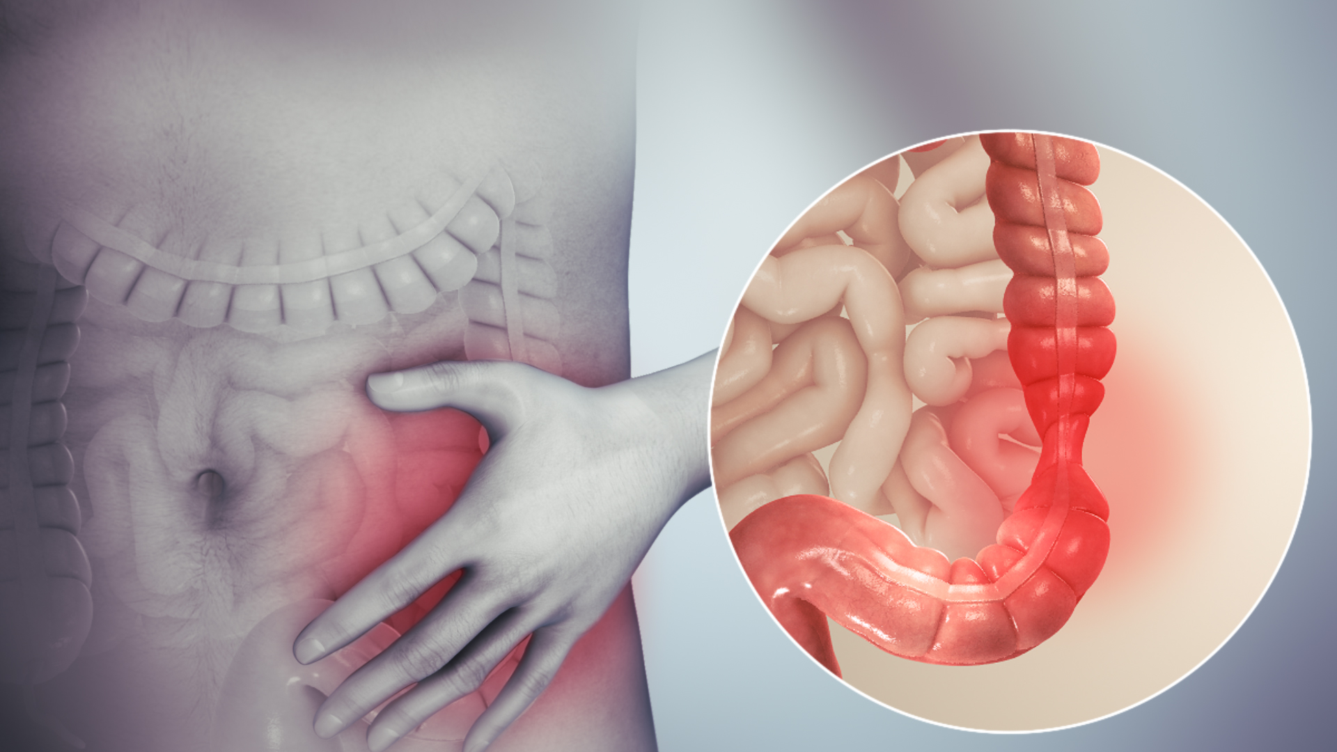 colorectal cancer or ibs que es papiloma canino