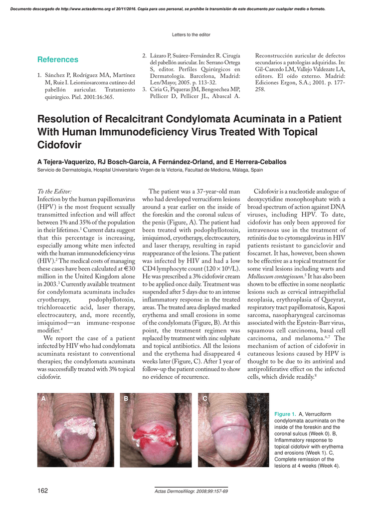 condyloma acuminata electrocautery metastatic cancer of the liver treatment