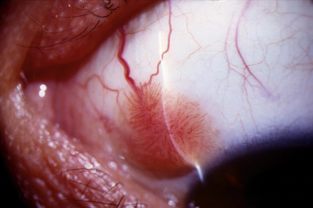 conjunctival sessile papilloma
