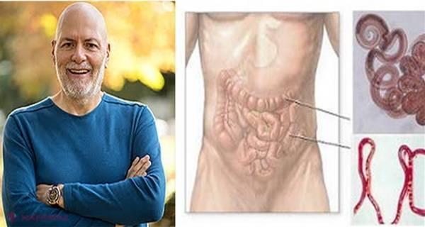 cu ce scapam de paraziti intestinali